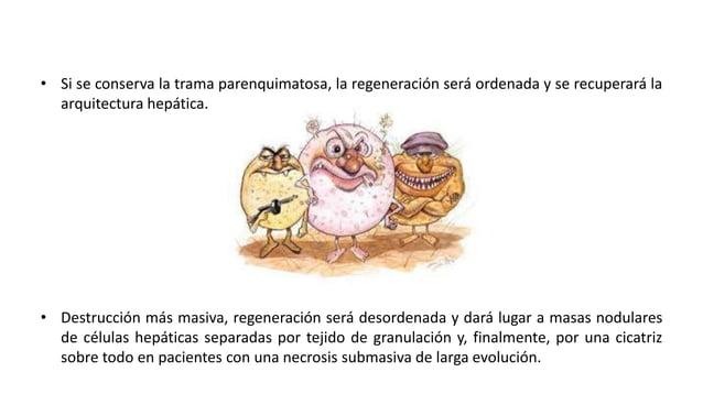 Hepatitis cronica- aguda virica