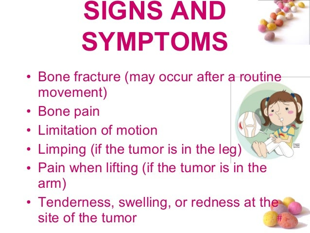 bone cancer in leg what are the symptoms