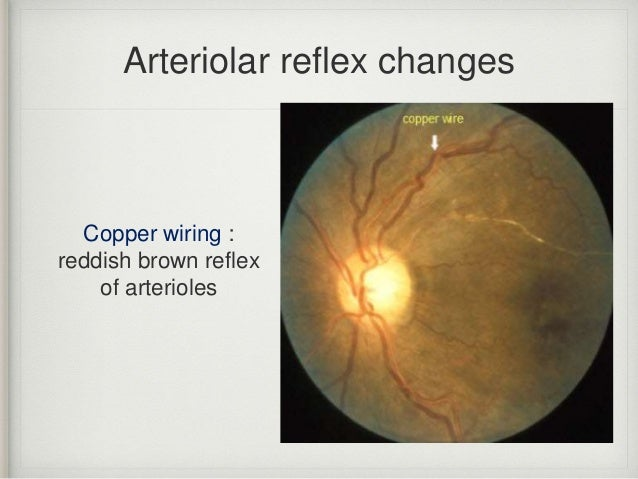 hepertensive retinopathy central retinal artery occlusion central rh slideshare net silver wiring retinopathy silver and copper wiring retina