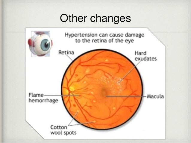 Hepertensive Retinopathy Central Retinal Artery Occlusion Central