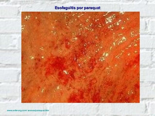 Diagnóstico 1. La presencia de lesiones cáusticas en el esófago y estómago. 2. El test cualitativo del ditionito que indic...