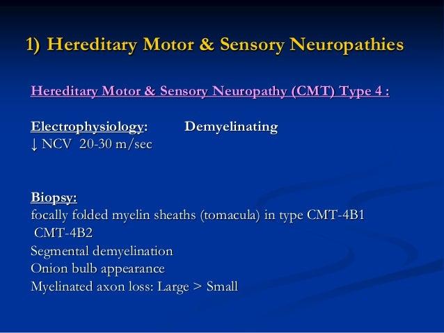 Hereditary neuropathies for Hereditary motor sensory neuropathy treatment