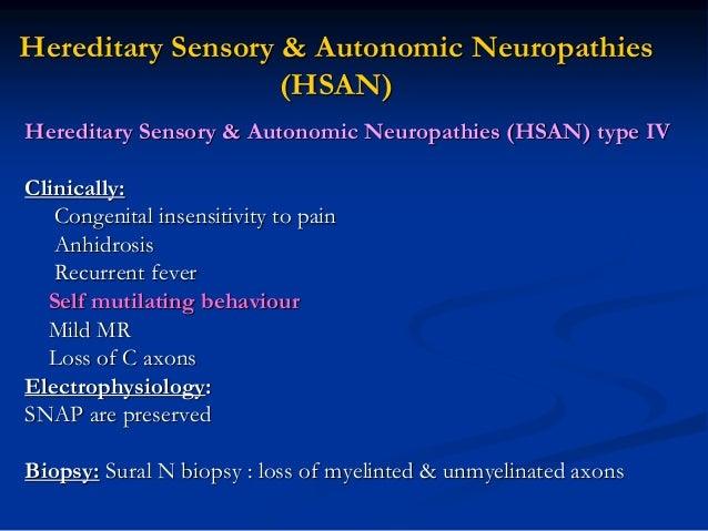 Classification of Hereditary Sensory and Autonomic ...  Hereditary Sensory And Autonomic Neuropathy
