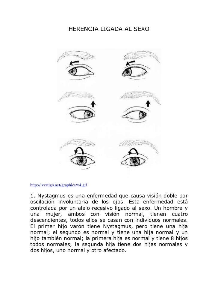 HERENCIA LIGADA AL SEXOhttp://ivertigo.net/graphics/v4.gif1. Nystagmus es una enfermedad que causa visión doble poroscilac...