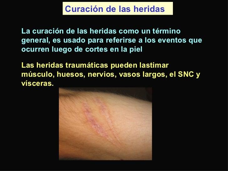 Curación de las heridas  La curación de las heridas como un término general, es usado para referirse a los eventos que ocu...