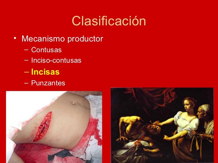 Clasificación <ul><li>Mecanismo productor  </li></ul><ul><ul><li>Contusas </li></ul></ul><ul><ul><li>Inciso-contusas </li>...