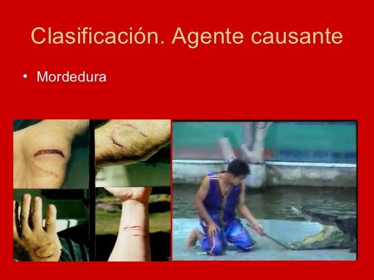 Clasificación. Agente causante <ul><li>Mordedura </li></ul>