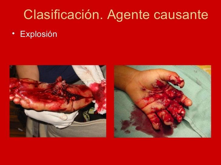 <ul><li>Explosión </li></ul>Clasificación. Agente causante