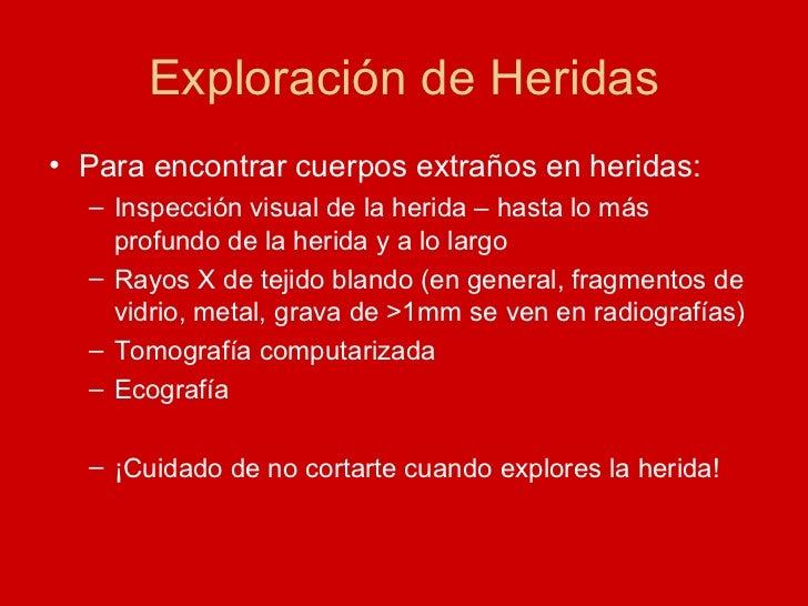 Exploración de Heridas <ul><li>Para encontrar cuerpos extraños en heridas: </li></ul><ul><ul><li>Inspección visual de la h...