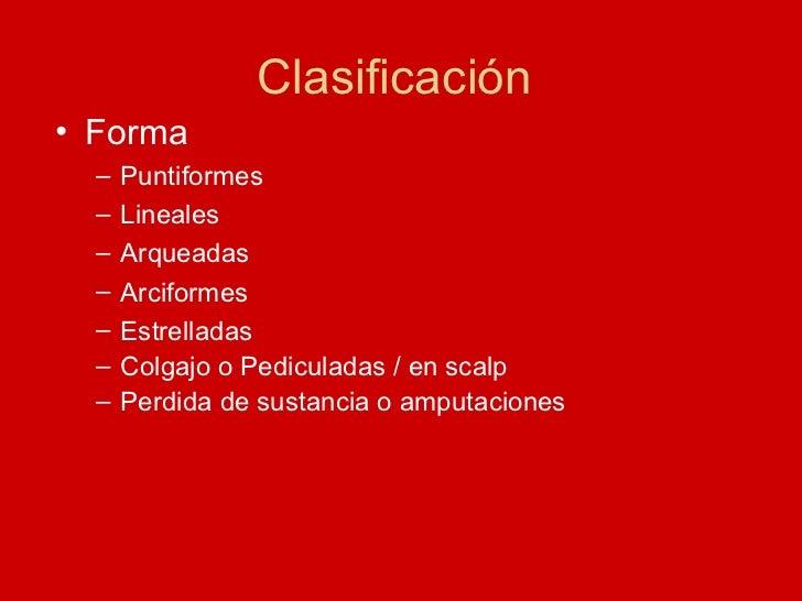 Clasificación  <ul><li>Forma </li></ul><ul><ul><li>Puntiformes </li></ul></ul><ul><ul><li>Lineales </li></ul></ul><ul><ul>...