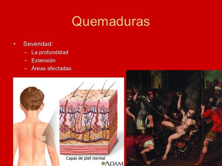Quemaduras <ul><li>Severidad: </li></ul><ul><ul><li>La profundidad </li></ul></ul><ul><ul><li>Extensión </li></ul></ul><ul...