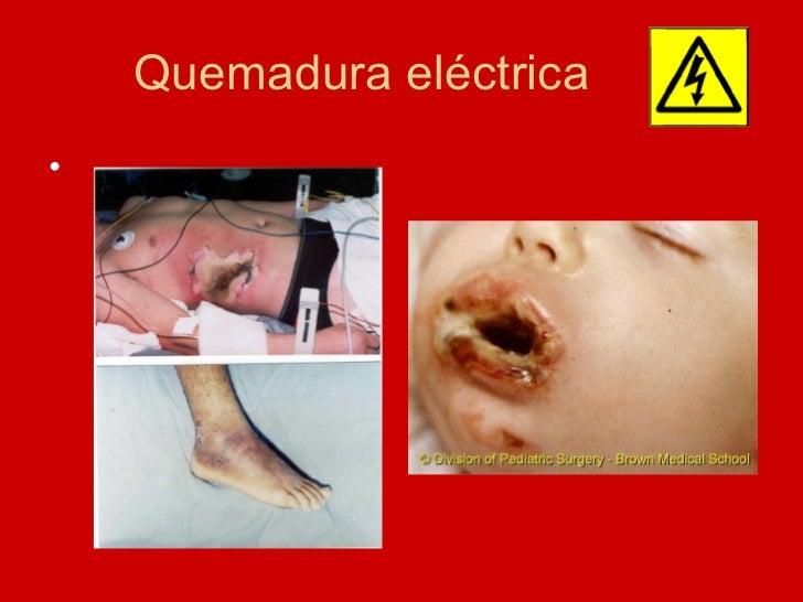Quemadura eléctrica