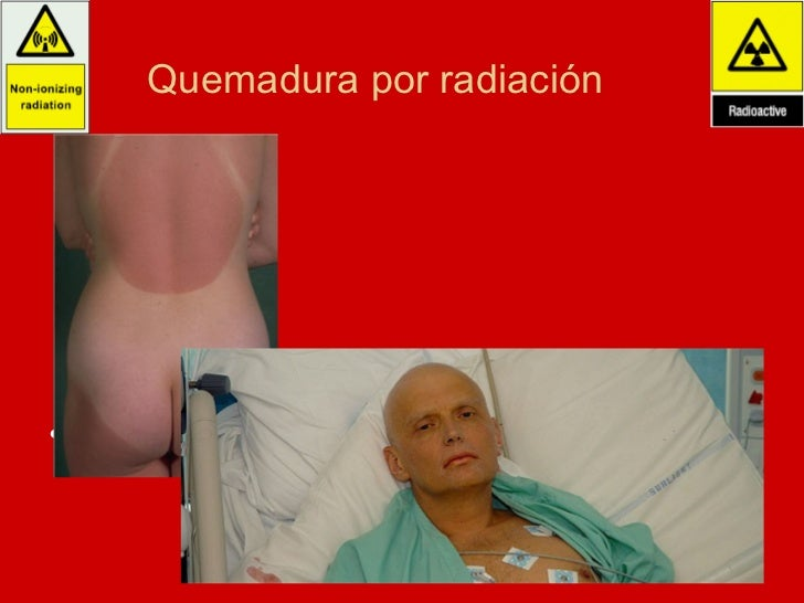 Quemadura por radiación