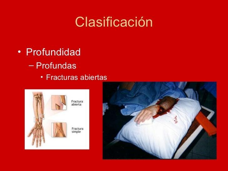 Clasificación <ul><li>Profundidad </li></ul><ul><ul><li>Profundas </li></ul></ul><ul><ul><ul><li>Fracturas abiertas </li><...