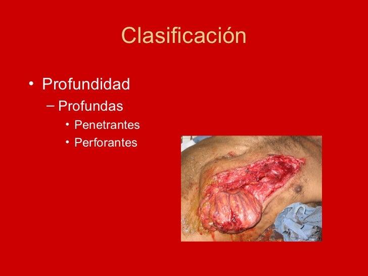 Clasificación <ul><li>Profundidad </li></ul><ul><ul><li>Profundas </li></ul></ul><ul><ul><ul><li>Penetrantes </li></ul></u...