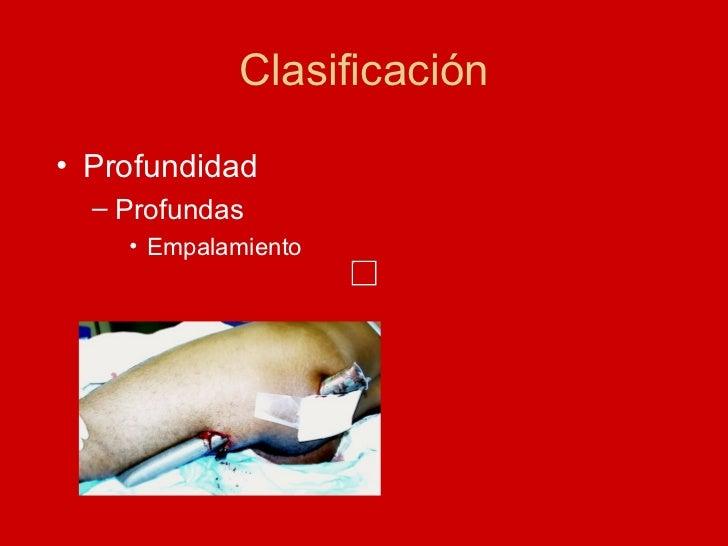 Clasificación <ul><li>Profundidad </li></ul><ul><ul><li>Profundas </li></ul></ul><ul><ul><ul><li>Empalamiento </li></ul></...