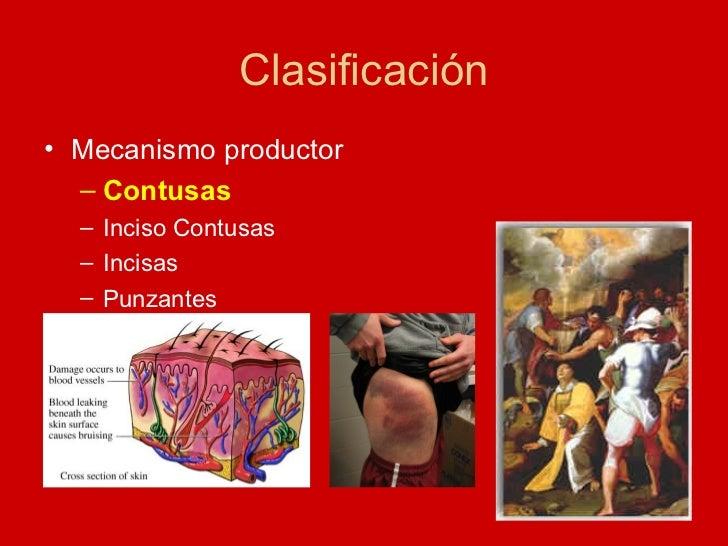 Clasificación <ul><li>Mecanismo productor  </li></ul><ul><ul><li>Contusas </li></ul></ul><ul><ul><li>Inciso Contusas </li>...