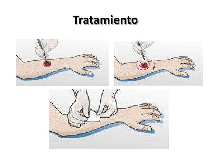 cuales son medicamentos antiinflamatorios no esteroideos