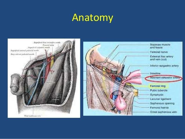 femoral hernia anatomy - photo #15
