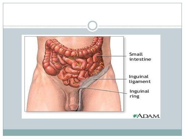 Causes  increased intra abdominal pressure activities