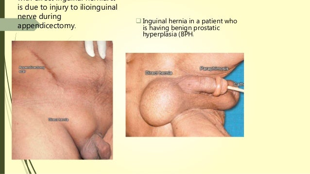 Hernia and its surgeries