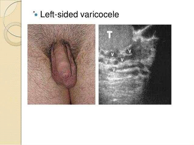 Herniotomy & Herniorrhaphy   Open method and    Laparoscopic method