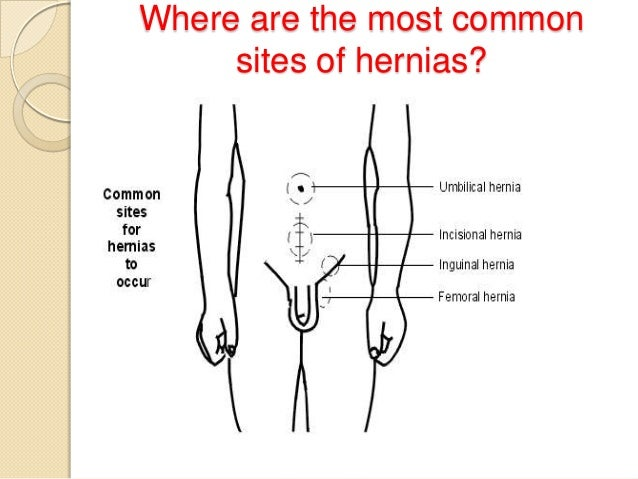 Where are the most common sites of hernias?