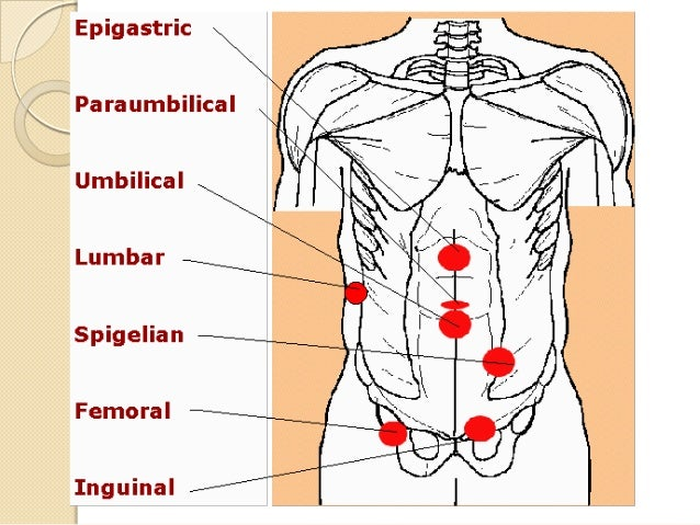Describe the inguinal canal Site: is situated just above the medial half of the inguinal ligament.  Content: It transmits...