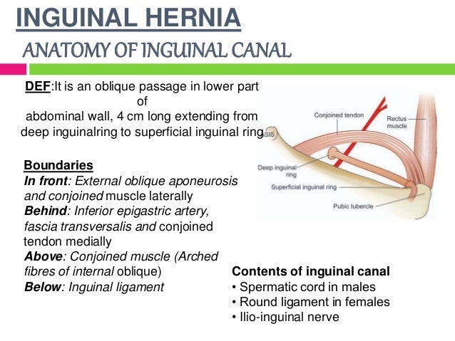 The gallery for --> Female Inguinal Hernia Anatomy Female Inguinal Hernia Anatomy