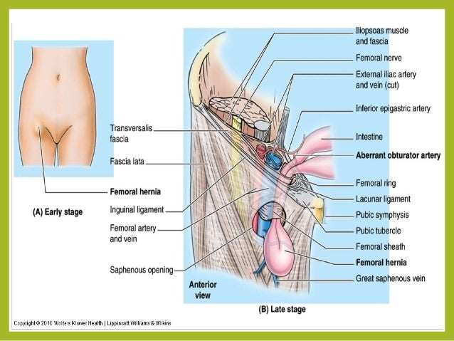 hernia (femoral & umbilical), Muscles