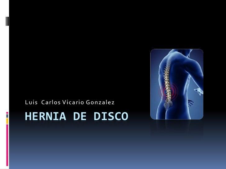 Hernia de disco <br />Luis  Carlos Vicario Gonzalez<br />