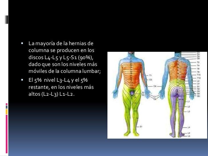 La radiografía sheynogo del departamento en la proyección lateral