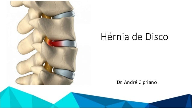 Hérnia de Disco Dr. André Cipriano