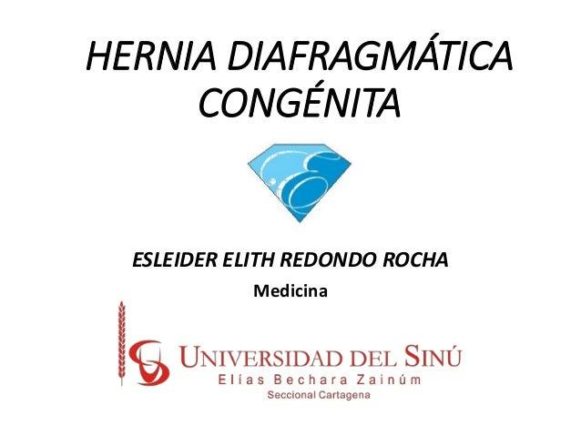 HERNIA DIAFRAGMÁTICA CONGÉNITA ESLEIDER ELITH REDONDO ROCHA Medicina