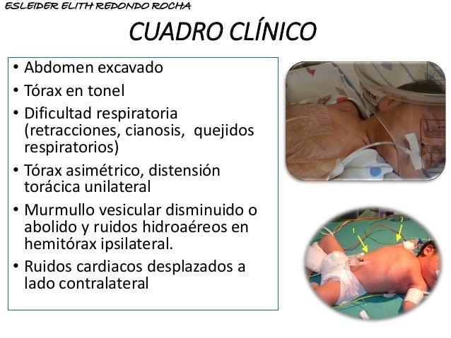CUADRO CLÍNICO • Abdomen excavado • Tórax en tonel • Dificultad respiratoria (retracciones, cianosis, quejidos respiratori...
