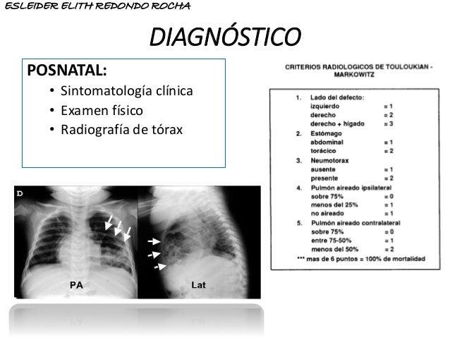 DIAGNÓSTICO POSNATAL: • Sintomatología clínica • Examen físico • Radiografía de tórax ESLEIDER ELITH REDONDO ROCHA