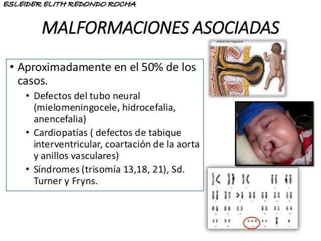 MALFORMACIONES ASOCIADAS • Aproximadamente en el 50% de los casos. • Defectos del tubo neural (mielomeningocele, hidrocefa...