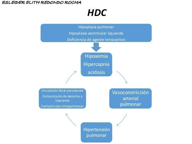 Hipoxemia Hipercapnia acidosis Vasoconstricción arterial pulmonar Hipertensión pulmonar Circulación fetal persistente Cort...