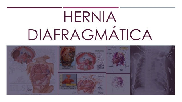 HERNIA DIAFRAGMÁTICA