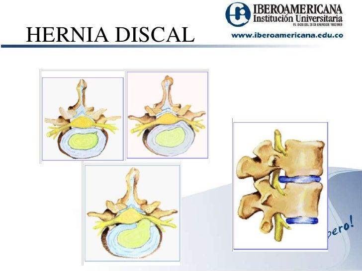 Hernia discal for Silla oficina hernia discal