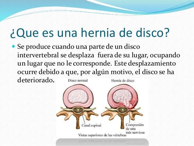 Los cambios de la médula sheynogo del departamento de la columna vertebral