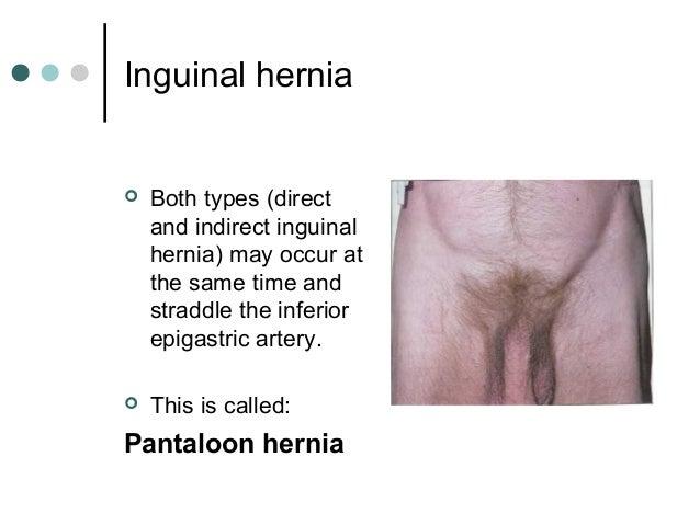 inguinal hernia location diagram | Diarra
