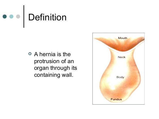 Hernia  Slide 3