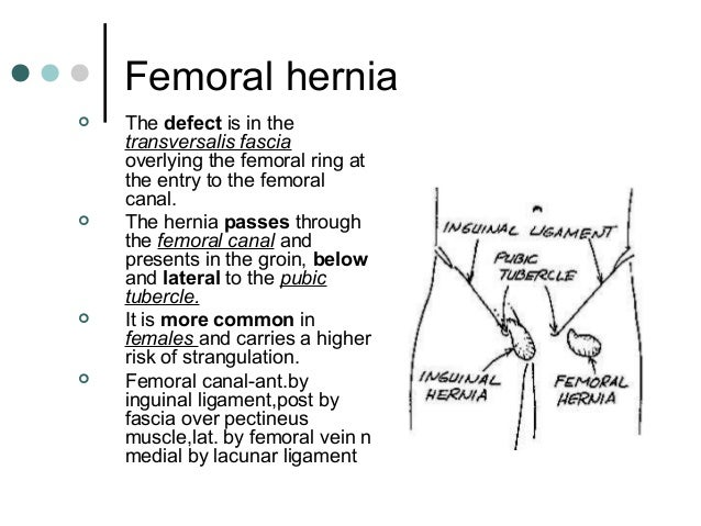 Anatomy of femoral hernia