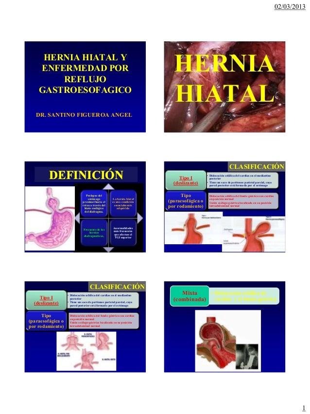 02/03/2013     HERNIA HIATAL Y    ENFERMEDAD POR        REFLUJO                                                           ...