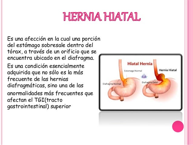 Hernia Hiatal Y Abdominal