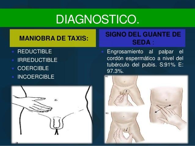 Transversalis Fascia Hernia inguinal e hidr...