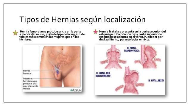 El emplasto a la osteocondrosis de la columna vertebral