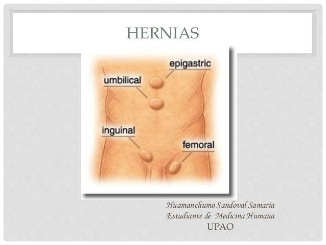 HERNIAS Huamanchumo Sandoval Samaria Estudiante de Medicina Humana UPAO