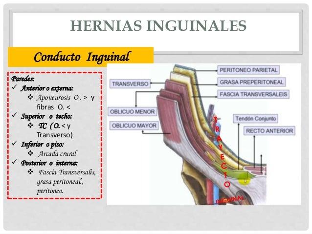 DIAGRAM        Diagram    Of Femoral Hernia FULL Version HD